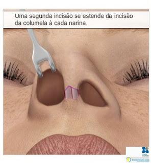 rinoplastia15