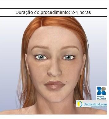 rinoplastia22