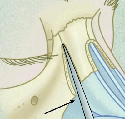 rinoplastia54