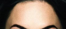 Terço superior da face