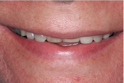 Perda da tonicidade muscular peri-labial em paciente idosa. Notar a diminuição na quantidade visível dos dentes.